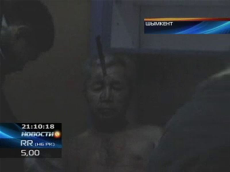 Пожилому таксисту вонзили нож прямо в лоб, при этом он остался жив