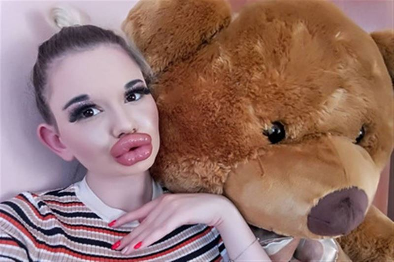 Студентка сделала 21 процедуру по увеличению губ
