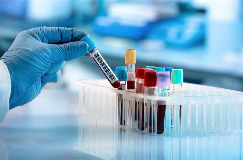 Өткен тәулікте 71 адамнан коронавирус анықталды
