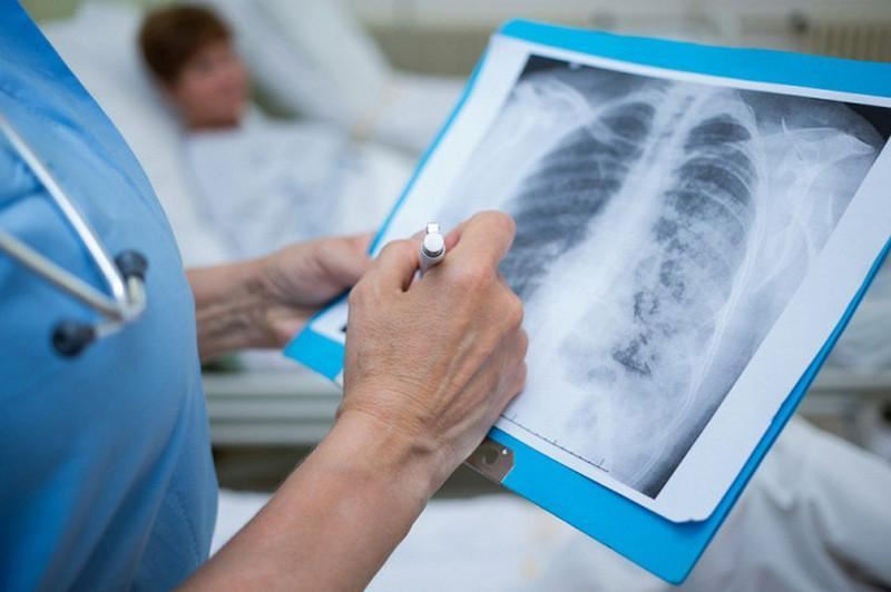 179 случаев заболевания пневмонией с признаками коронавируса зафиксировали в Казахстане