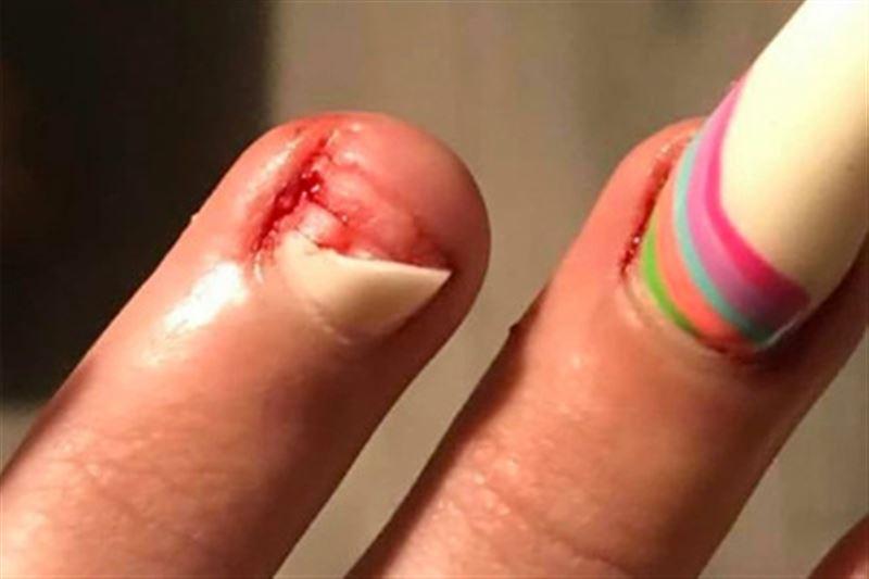 Женщина лишилась ногтя из-за запрещенного средства