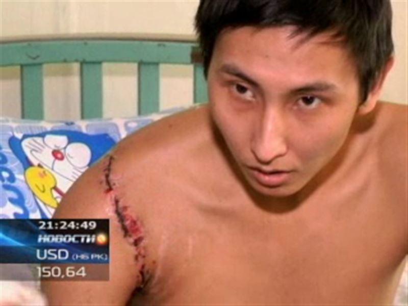 В Бишкеке казахстанцу пришили оторванную руку