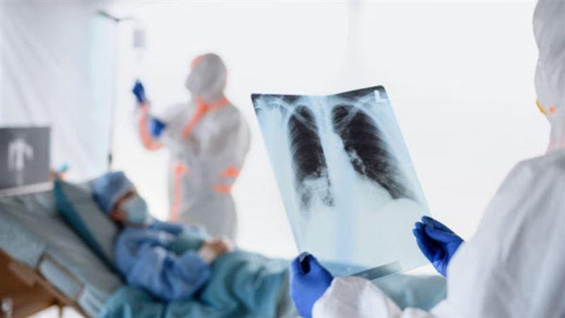 В Казахстане за сутки 181 человек заболел пневмонией