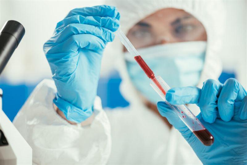 Елімізде 800-ге жуық адамнан коронавирус анықталды