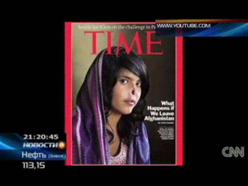 Афганской девушке хирурги сделали новые нос и уши, которые отрезал ее собственный муж