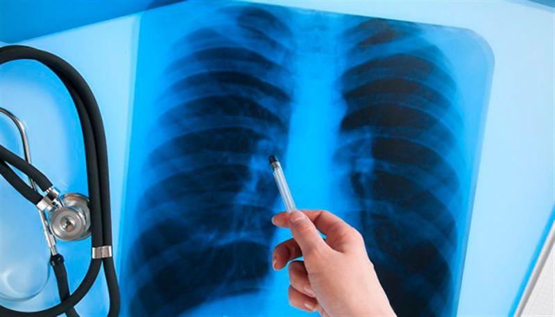 В Нур-Султане отмечается снижение заболеваемости туберкулезом