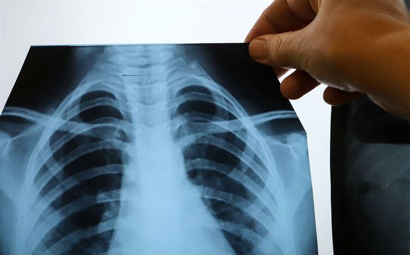 Перечислены девять симптомов рака легких