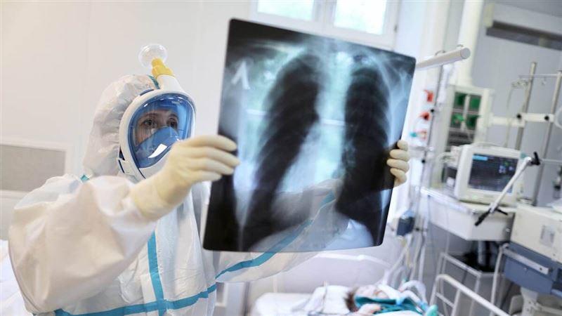Пневмония с признаками КВИ: 177 заболевших, шесть летальных исходов за сутки