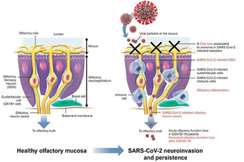 Объяснен главный симптом при коронавирусе