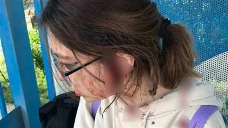 Алматы облысында жасөспірімді соққыға жыққан екі әйел іздестірілуде