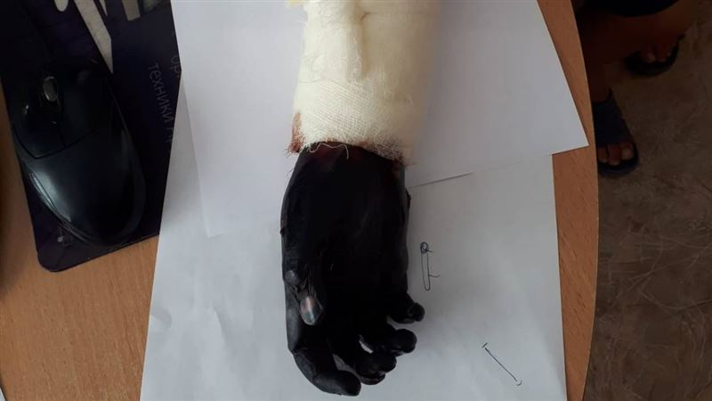 Ребенку ампутировали руку после лечения «целителя» в Туркестанской области