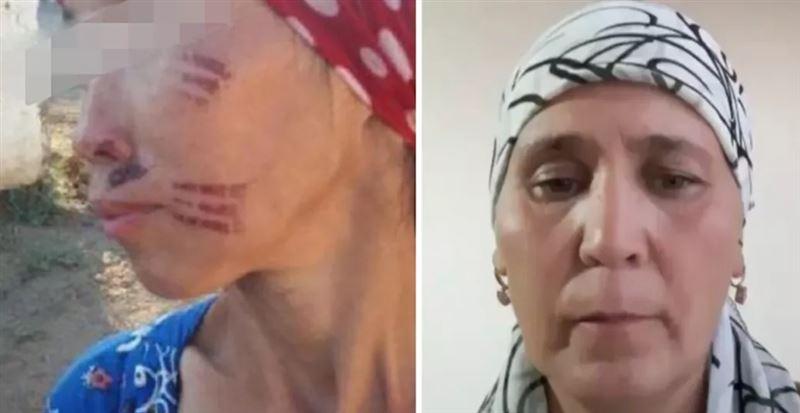Золовка обожгла снохе лицо раскаленной вилкой: в Казнете появилось видео с извинениями женщины