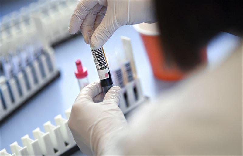 5708 заболевших коронавирусом выявили в Казахстане