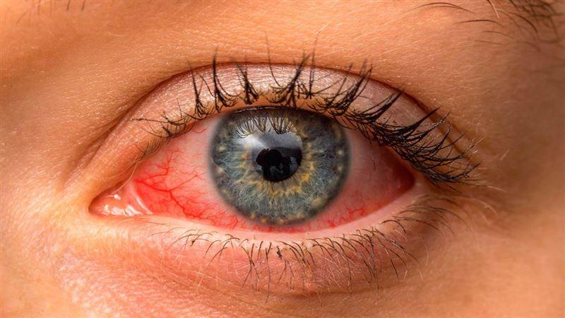 У перенесших ковид оказались повреждены глаза