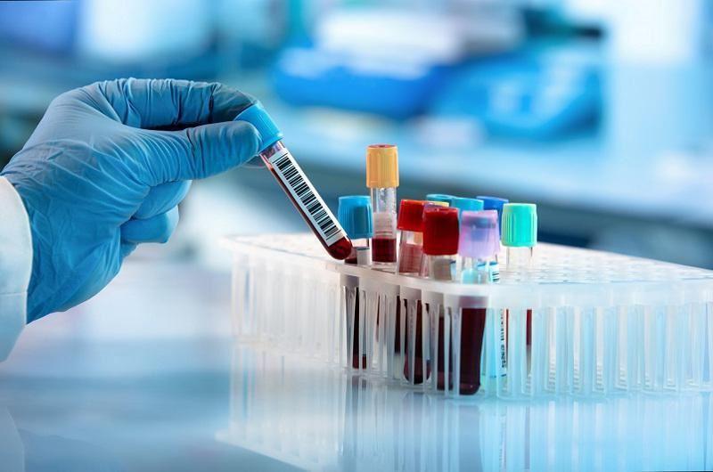 Өткен тәулікте 7691 адамнан коронавирус анықталды