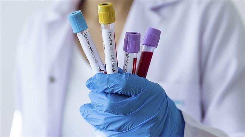 Елімізде тағы 7 792 адам коронавирус жұқтырды