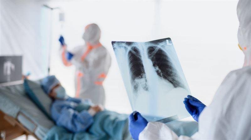 Коронавирус пен пневмониядан 64 науқас қайтыс болды