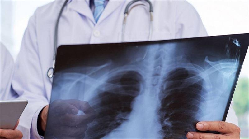 62 человека скончались за сутки в Казахстане от коронавируса и пневмонии