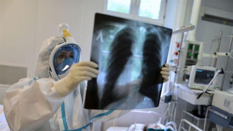 42 человека скончались за сутки в Казахстане от пневмонии и коронавируса