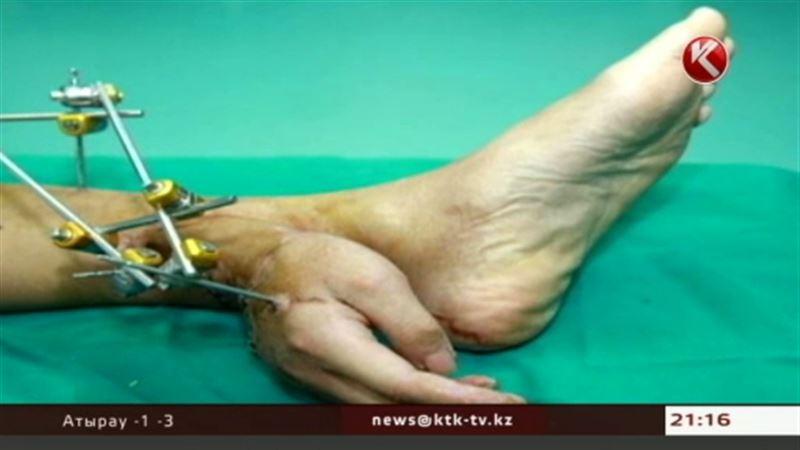Китайские медики, чтобы спасти пациенту конечность, пришили руку к ноге