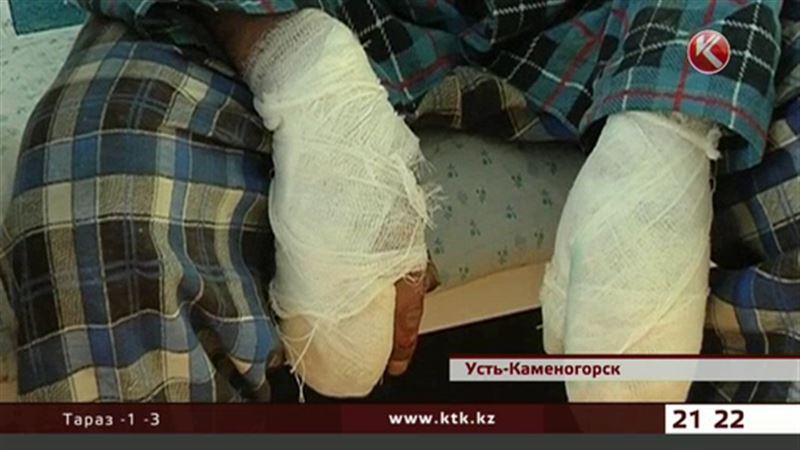В Усть-Каменогорске треть пациентов с обморожением – автомобилисты