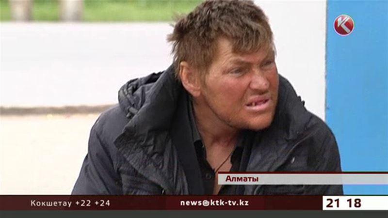 Бомжа с аппаратом Илизарова на ноге обнаружили в центре Алматы