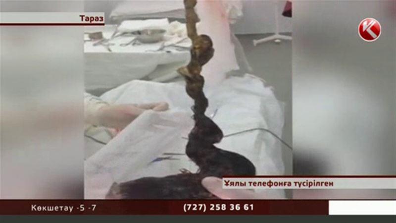 Жамбыл облысында 11 жасар қыздың  асқазанынан 1 келіден асатын шаш шықты
