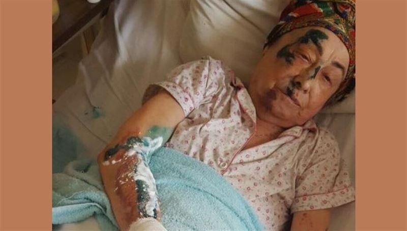 Молодой водитель сбил 84-летнюю алматинку во дворе ее дома