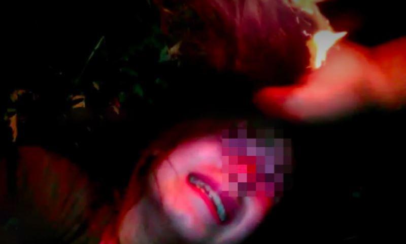 (18+) В России подростки избили школьницу и подожгли ей волосы
