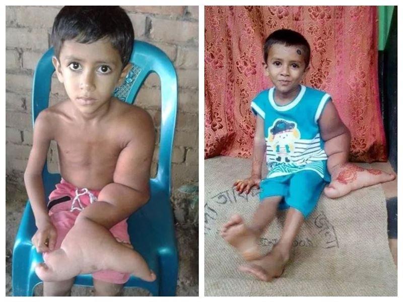 Больше шести килограмм весит рука у пятилетнего ребенка