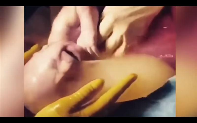 (ВИДЕО 18+): ребенок родился в амниотическом мешке