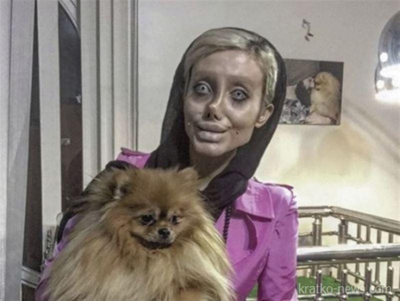 ШОК: 50 операций сделала иранка, чтобы стать похожей на Анджелину Джоли