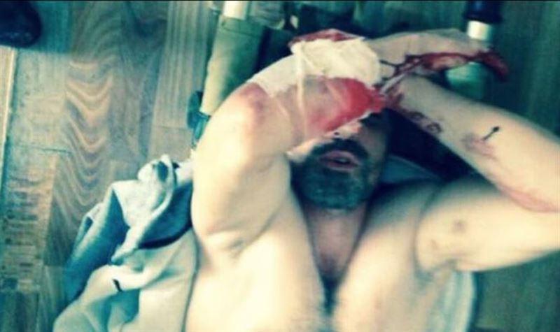 ШОК: В Сети появилось видео из камеры вспоровшего себе живот чемпиона ММА