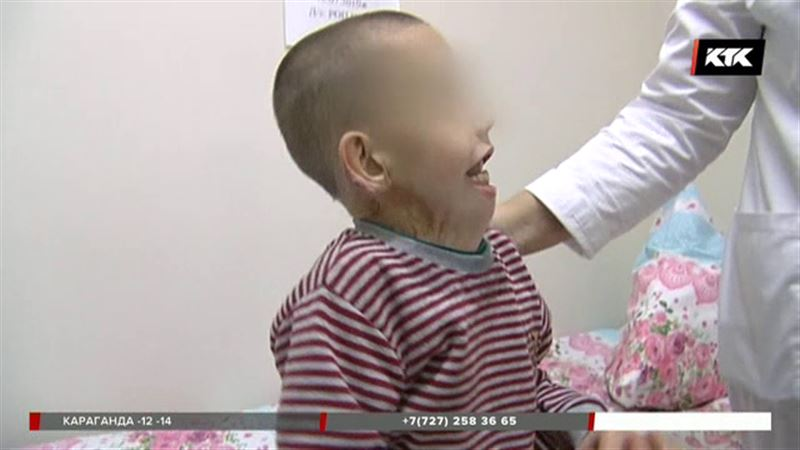 Обожженного мальчика из Алматинской области лечат в Астане