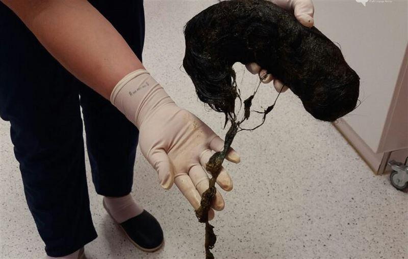 ВИДЕО: Ақтаулық қыздың асқазанынан ұйысып қалған батпандай шаш алынды