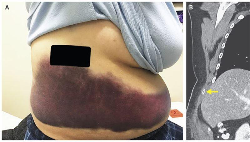 Американка сломала себе ребро во время приступа кашля