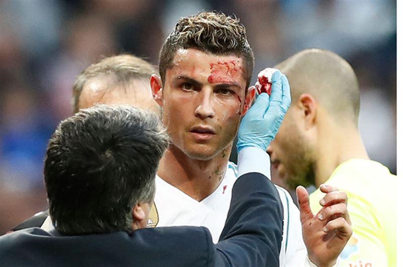 Криштиану Роналду разбили лицо до крови