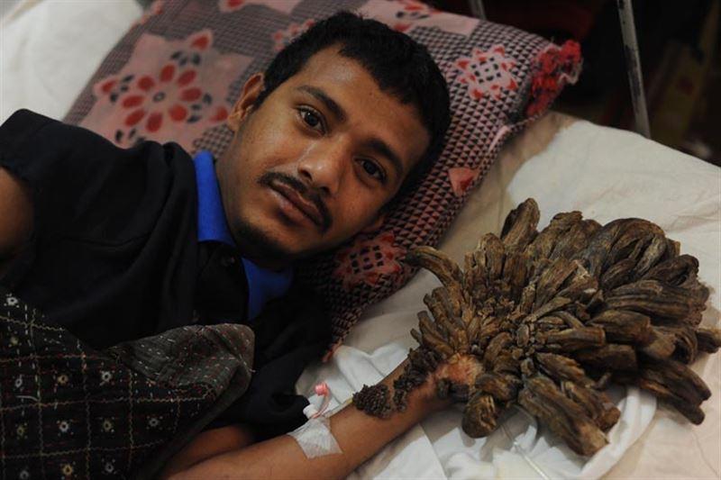 ФОТО: Человек-дерево перенес 16 операций по удалению 5 кг наростов