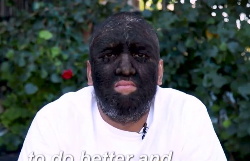 Самый волосатый мужчина в мире, которого прозвали «человек-волк», пробился в Голливуд