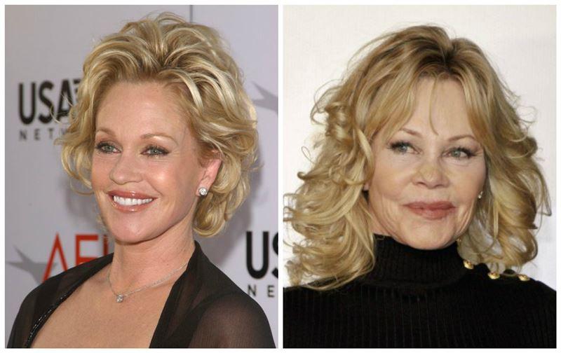 Фото: Рак кожи обезобразил лицо голливудской актрисы