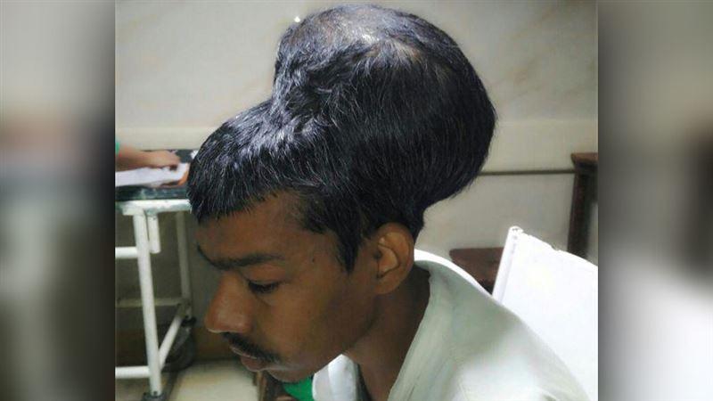 ШОК: В Индии удалили самую большую в мире опухоль мозга