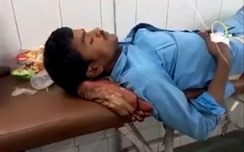 В Индии пациент больницы лежал на отрезанной ноге вместо подушки