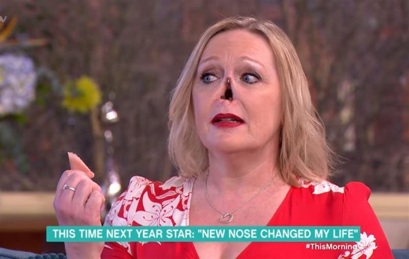 Женщина сняла протез носа в прямом эфире, а затем вернула его на место