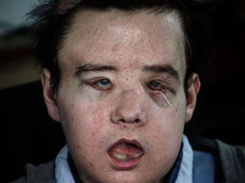 ШОК: Француз стал первым человеком в мире с дважды пересаженным лицом