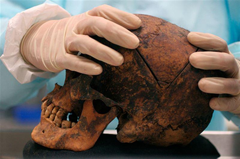 В зубах древнего человека обнаружили опаснейший вирус