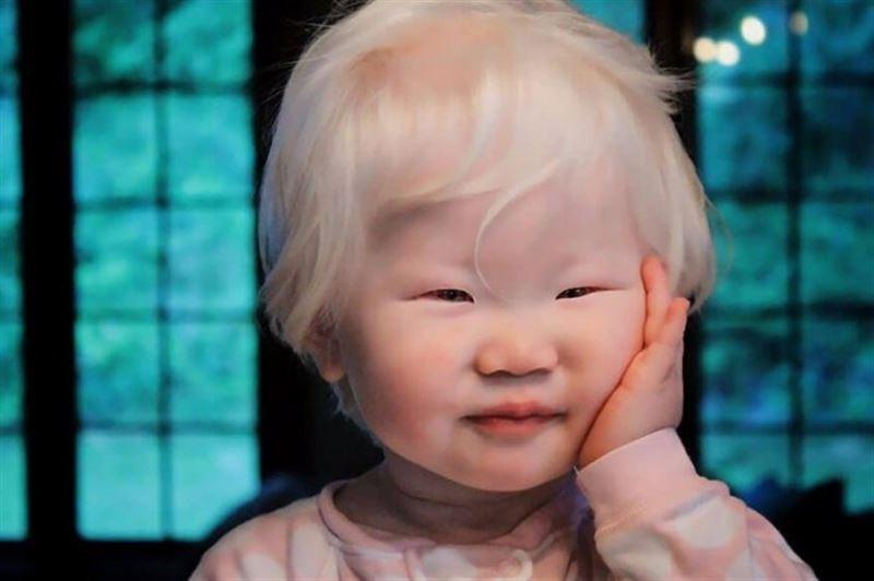 Амулет жасау үшін альбинос қыздың басын кесіп алған