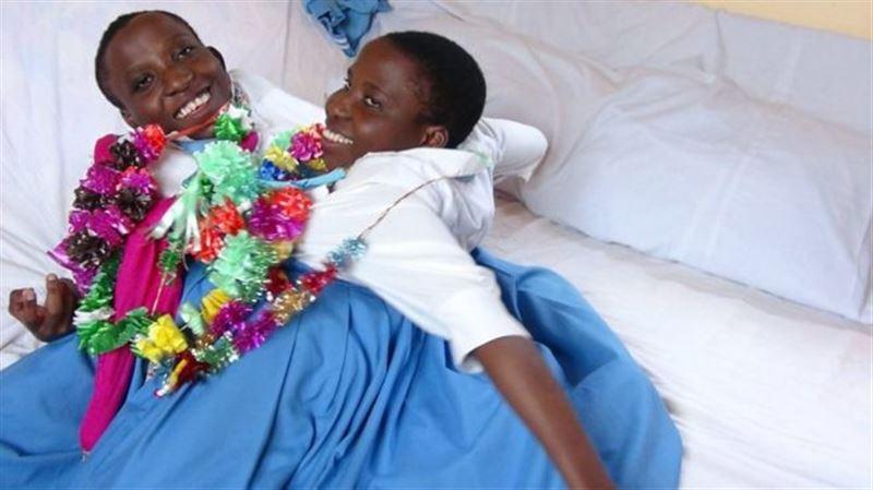 Знаменитые сиамские близнецы умерли в Танзании