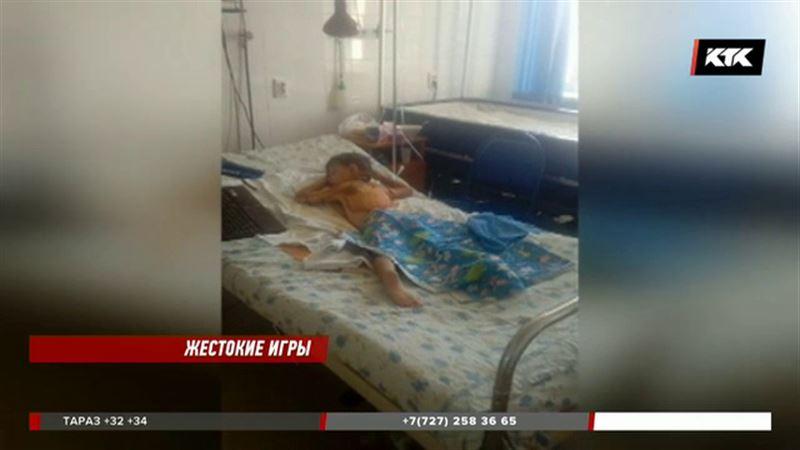 В Таразе обгоревший ребенок утверждает, что его облили бензином и подожгли
