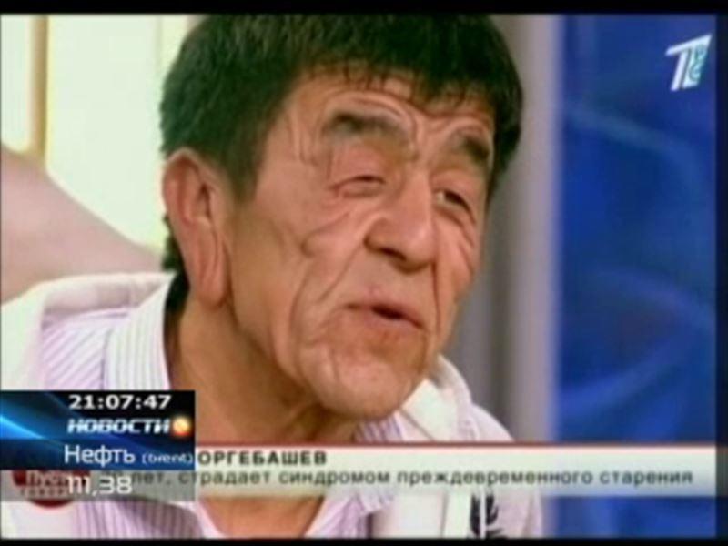 Казахстанский юноша с лицом старика может помолодеть