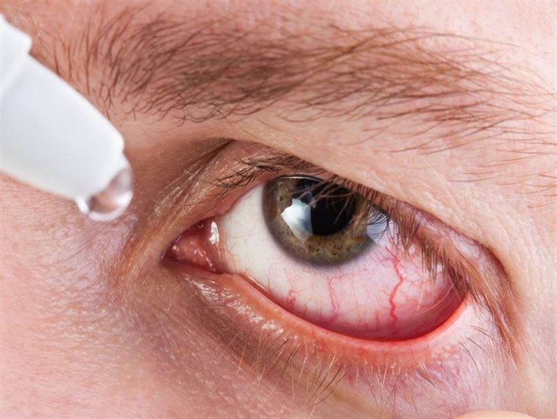 Американка три дня медленно убивала мужа глазными каплями